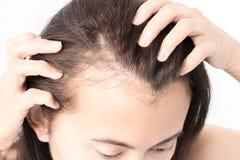 Проблема выпадения волос женщины серьезная для шампуня и щеголя здравоохранения Стоковые Фотографии RF
