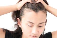Проблема выпадения волос женщины серьезная для шампуня и щеголя здравоохранения Стоковое фото RF