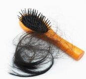 Проблема выпадения волос Стоковые Фотографии RF