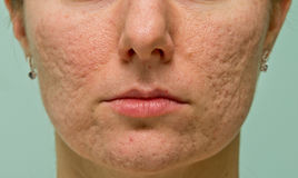 Проблемная кожа Стоковые Изображения RF