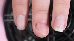Проблемные, тягостные ногти девушки Стоковые Изображения