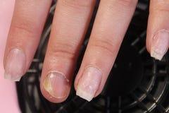 Проблемные, тягостные ногти девушки Стоковые Фотографии RF