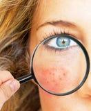 проблемы кожи стоковые фото