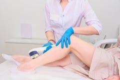 Процедура по лазера в клинике косметологии лазера стоковое фото rf