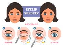Процедура по хирургии века раньше после illuatration с главным образом шагами Сверхнормальное удаление кожи и сала бесплатная иллюстрация