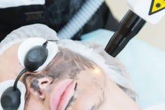 Процедура по шелушения стороны углерода конца-вверх Лазер пульсирует чистая кожа стороны Обработка косметологии оборудования проц стоковая фотография rf