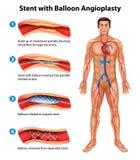 Процедура по ангиопластики Stent Стоковые Фотографии RF