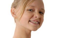 прямые зубы стоковое фото