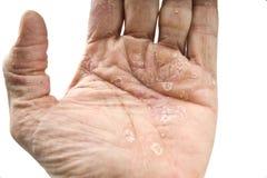 Псориаз, кожное заболевание стоковые изображения