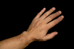 Псориаз на пальцах Стоковое Изображение RF