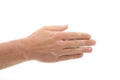псориаз рук ногтей вниз Стоковые Фото