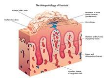 ревматоидный артрит лодыжки