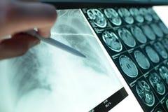 Пункты доктора с ручкой к изображению рентгеновского снимка легких вися на a Стоковое фото RF