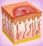 План рака кожи Стоковые Изображения
