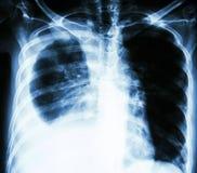 Плевральное излияние должное к раку легких стоковые изображения