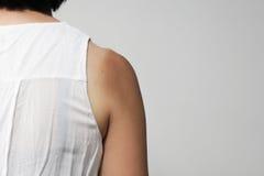 Плечо загара Стоковые Фото