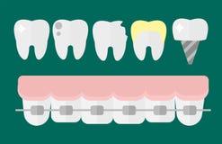 Плоский зуб дантиста здравоохранения имплантирует концепцию здравоохранения исследования медицинские и стоматологию гигиены аппар Стоковое Изображение