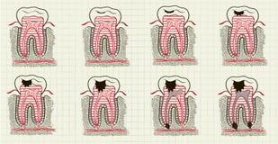 плохой изолированный иллюстрацией зуб стоматологии 3d Стоковые Изображения RF