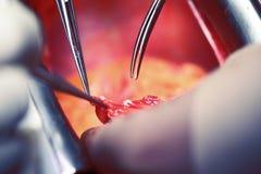 Работая руки докторов, сердечная хирургия Стоковые Изображения RF
