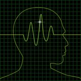 радиолокатор мозга Стоковые Фото