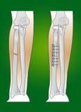 радиус интервенции трещиноватости хирургический Стоковые Фото
