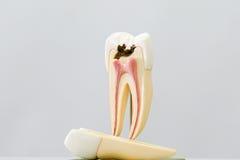 Разваленная модель зуба Стоковая Фотография