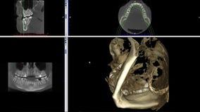 Развертка действительности MRI челюстей человека для анимации отснятого видеоматериала медицинской науки исследования дантиста ст бесплатная иллюстрация