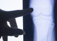Развертка испытания рентгеновского снимка соединения колена Стоковая Фотография RF