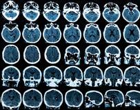 Развертка мозга Mri стоковое фото rf