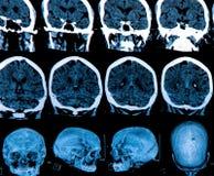Развертка мозга Mri стоковые изображения rf