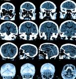 Развертка мозга Mri стоковые фото