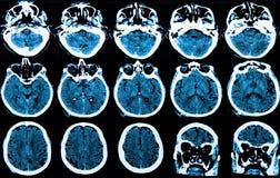 Развертка мозга Mri стоковое изображение rf