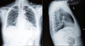 Развертка рентгена грудной клетки стоковая фотография