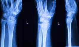 Развертка рентгеновского снимка больницы большого пальца руки пальца руки Стоковая Фотография RF