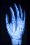 Развертка рентгеновского снимка больницы большого пальца руки пальца руки Стоковое Фото