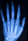 Развертка рентгеновского снимка больницы большого пальца руки пальца руки Стоковые Фото