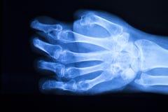 Развертка рентгеновского снимка больницы большого пальца руки пальца руки Стоковое Изображение RF