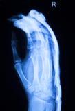 Развертка рентгеновского снимка больницы большого пальца руки пальца руки Стоковое фото RF