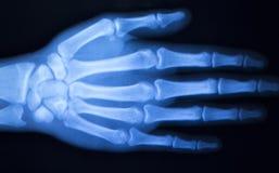 Развертка рентгеновского снимка больницы большого пальца руки пальца руки Стоковое Изображение