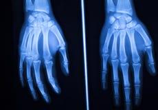 Развертка рентгеновского снимка больницы большого пальца руки пальца руки Стоковые Изображения RF