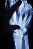 Развертка рентгеновского снимка ушиба руки запястья руки Стоковое Фото