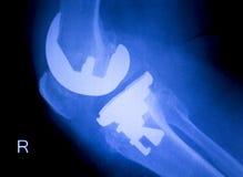 Развертка рентгеновского снимка implant колена протезная Стоковые Фото