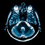Развертка человеческого мозга MRI Стоковая Фотография