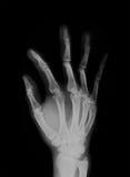 Развертка человеческого рентгеновского снимка руки отрицательная стоковые изображения