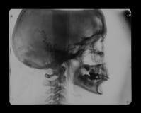 Развертка человеческого рентгеновского снимка черепа отрицательная стоковые изображения rf