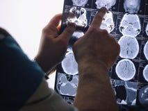 Развертка CT мозга луч изображения мозга x Доктор, смотря roentgenogram томографии компьютера на negatoscope Стоковая Фотография RF
