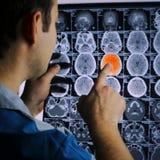 Развертка CT мозга луч изображения мозга x Ишемичный ход Доктор, смотря roentgenogram томографии компьютера на negato стоковые фото