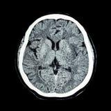 Развертка CT мозга: покажите мозг s нормального человека '(компьютерная аксиальная томограмма) стоковая фотография