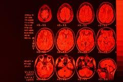 Развертка MRI или магниторезонансное изображение головы и сканирования мозга Результат MRI мозга со значениями и номерами с красн стоковые изображения rf