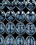 Развертка MRI мозга для диагноза стоковое изображение rf